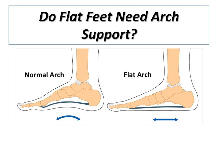 Do Flat Feet Need Arch Support?